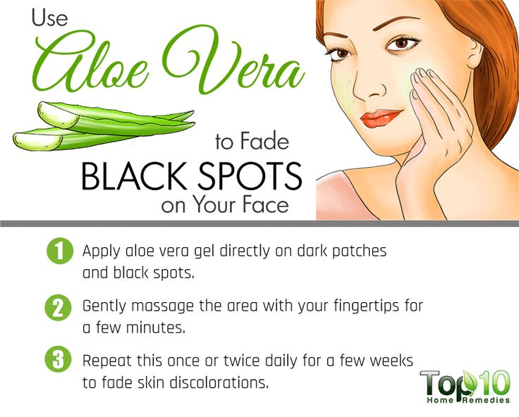 aloe vera for black spots on face