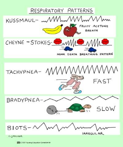 Respiratory Patterns #rcp #rt #respiratory