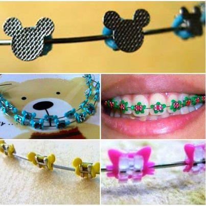 Borrachinha de aparelho do Mickey e da Minnie