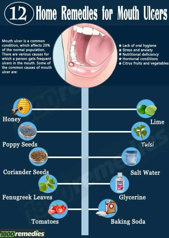 Home Remedies for Mouth Ulcers If you are suffering from mouth ulcer, then you will not be able to enjoy even the most delicious food on earth. So what is the solution for this problem? Yes, you guessed it right. There are many home remedies for mouth ulcers, which will give you immediate relief and cure. Let's read on to know more.