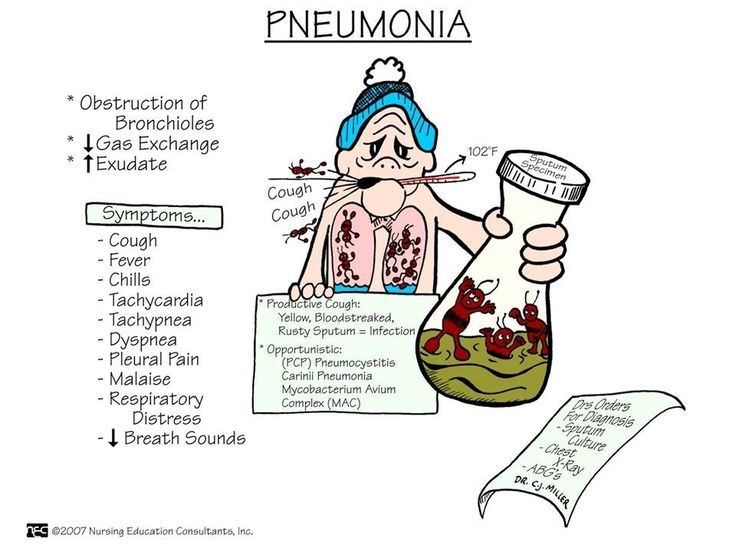 17 Best images about Respiratory on Pinterest ...