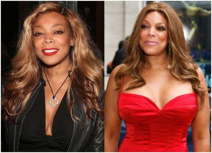 Wendy Williams plastic surgery #wendywilliams #plasticsurgery