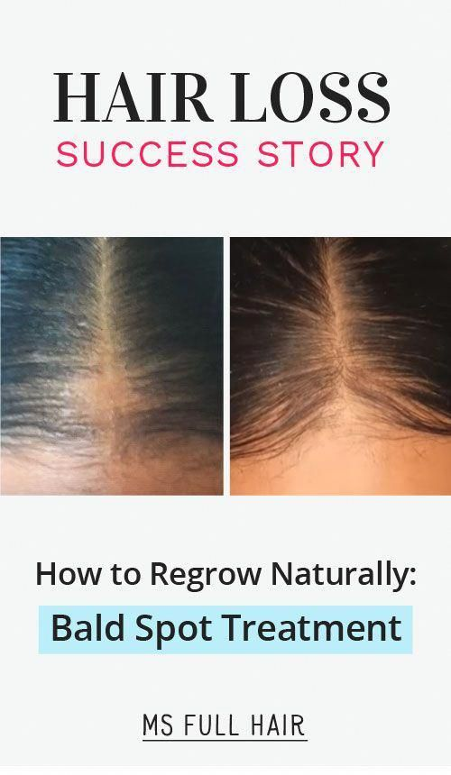 Success She Found The Best Bald Spot Treatment Formula Included