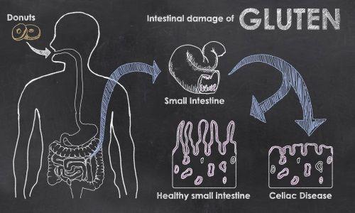 Qual é a diferença entre doença celíaca, intolerância ao glúten e alergia ao trigo?