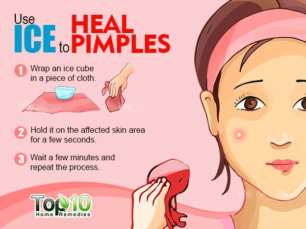 How to Get Rid of Pimples Fast | Top 10 Home Remedies