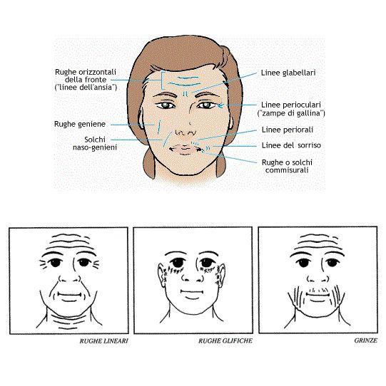 Come liberarsi da risposte di lentiggini di faccia
