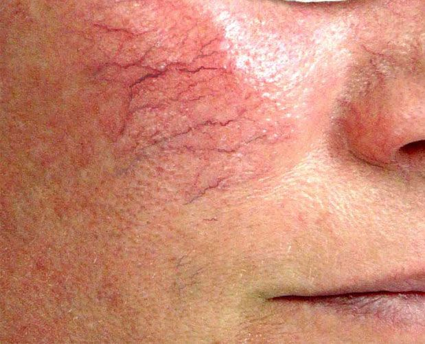 Facial spider veins are dilated veins that appear on the face and neck. They can be caused by excessive sun exposure, pregnancy, oral contraceptive use, and liver disease.