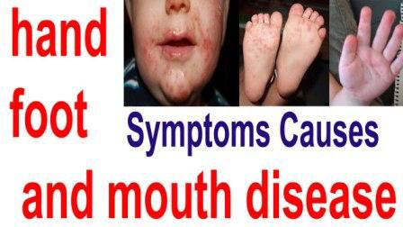 Hand foot and mouth disease a light-weight, contagious infection common in young kids is defined by sores among the mouth and a rash on the hands and feet. Hand foot and mouth disease is most typically caused by a Coxsackie virus.
