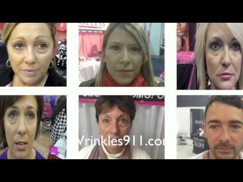 Instantly Ageless Before & After #anitagingcream #skincare  Buy here: http://earntoday.jeunesseglobal.com/en-US/instantly-ageless/