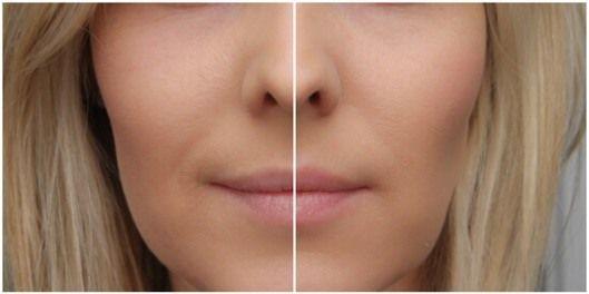 llll➤ Lipinjection Walberg Test 2016. Lippen vergrößern mit dem Lip Boosting System von Walberg. Testbericht, Kosten