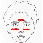 Effectieve huidverzorging bij Rosacea