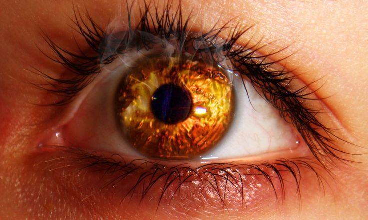 Ожог глаз щелочью – это одна из самых опасных видов травм глаз, которая только может быть. При попадании в глаза щелочи, происходит химический ожог. Ожоги глаз кислотами и щелочами носят тяжелейший характер, тяжело поддаются лечению и, как правило, лечение очень длительное и не без последствий. Неотложная помощь при ожоге глаз щелочью должна последовать уже впервые минуты, даже впервые секунды после травмы и уже после того как была оказана первая помощь, нужно вызывать бригаду скорой помощи.