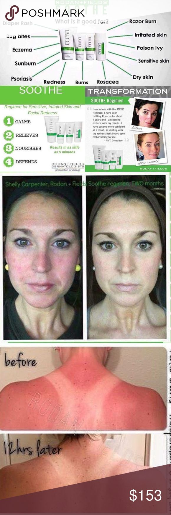 Rodan and Fields Soothe Regimen Sensitive skin? Rosacea? Eczema? Rodan and Fields soothe is for you! This ultra gentle regimen calms and soothes the skin to help you get the healthiest skin of your life! New with seals on all bottles Makeup