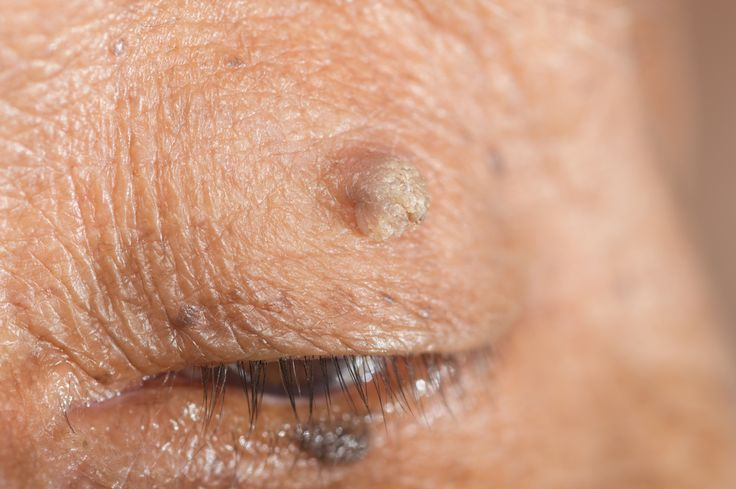 close up of skin tag of left upper eyelid. | Skin Tags: What They Are and How to Get Rid of Them
