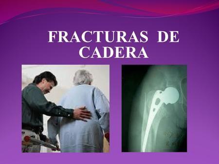 FRACTURAS DE CADERA. La Cadera La cadera es la articulación donde se une el hueso del muslo con el de la pelvis. Las caderas son articulaciones en rótula.