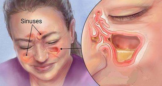 Une infection des sinus, également connue sous le nom de sinusite, est une inflammation de la muqueuse des sinus. Elle est habituellement déclenchée par une infection virale aiguë des voies respiratoires. Certaines personnes sont plus susceptibles de contracter une sinusite que d'autres. Vu que les sinus se forment progressivement jusqu'à l'âge de 12 ans, les adultes sont donc plus exposés à la maladie, néanmoins il arrive que les nourrissons et les enfants en souffrent également....