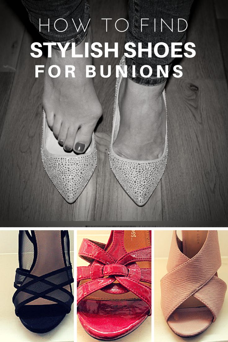 Women's sandals that hide bunions - How To Find Stylish Shoes For Bunions