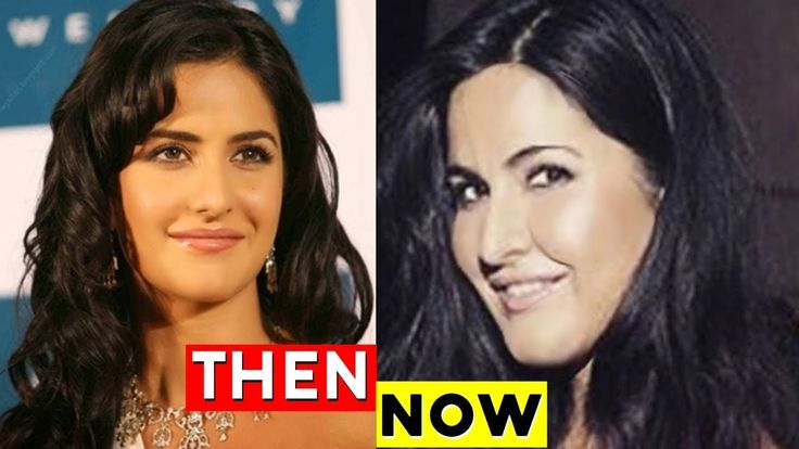 Katrina Kaif's Plastic Surgery Gone Wrong? - Reason behind Katrina Kaifs suddenly Swollen Face - Download This Video   Great Video. Watch Till the End. Don't Forget To Like & Share Katrina Kaifs Plastic Surgery Gone Wrong The reason behind Katrina Kaifs suddenly swollen face For any copyright issue contact us at rongoshare@yahoo.com or one of our SOCIAL NETWORKS.Once We have received your message and determined you are the proper owner of this content we will have it removed for sure.There…