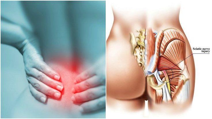 11 Remedies voor ischias u hard nodig om te proberen voordat knallen Another Painkiller