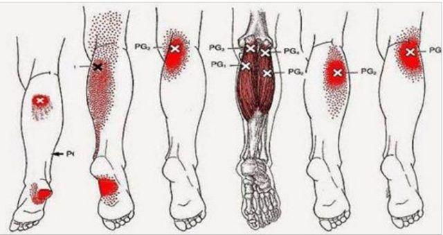 Los calambres en las piernas son también conocidos como calambres nocturnos o espasmo muscular. Esto...