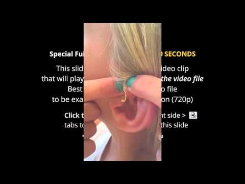 See the Biggest Zit Popped - YouTube