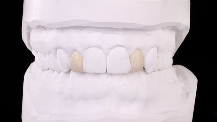 Prettau® Anterior veneers in the maxilla on 12 and 22. The teeth have not been prepared - by Rudolf Brugger