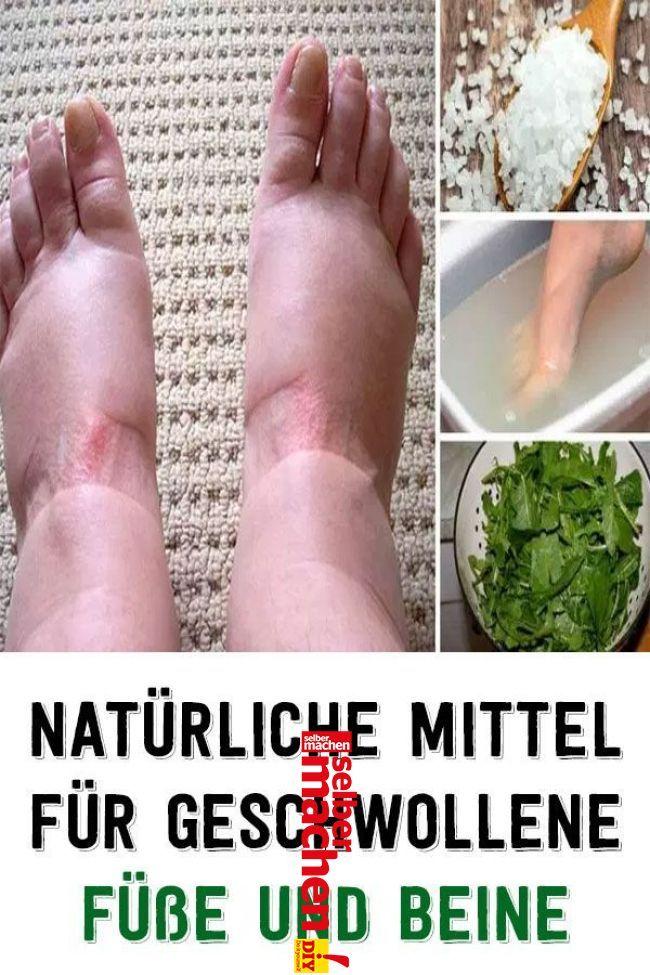 Naturliche Mittel Fur Geschwollene Fusse Und Beine Wasser In Den Beinen Geschwollene Beine