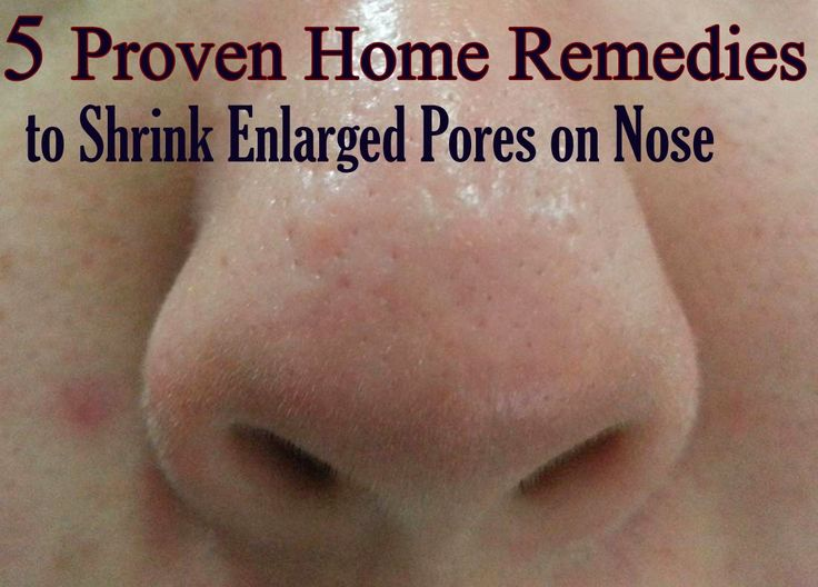 large pores on nose - photo #25