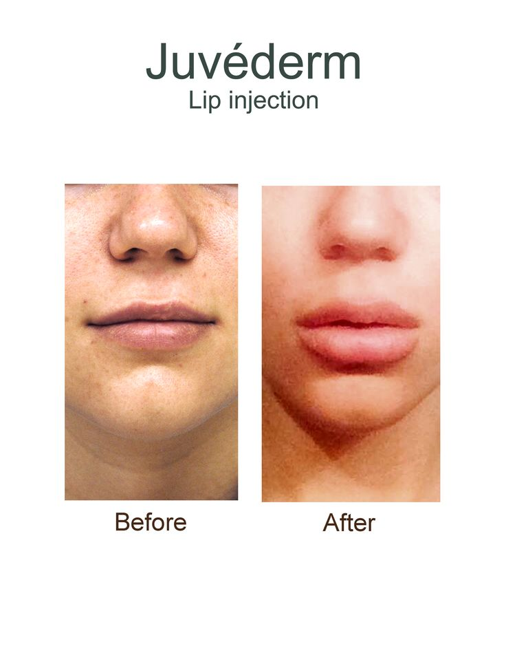 Juvederm Filler for Under Eyes w/Before & After Pictures ...