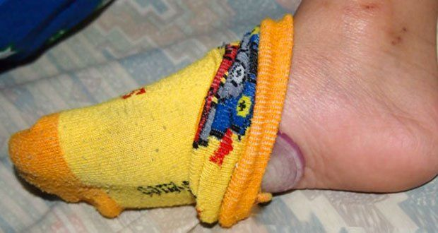 L'oignon dans les chaussettes, une pratique ancestrale pour prévenir les maladies et purifier le sang.