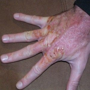 Effective Home Remedies For Poison Oak