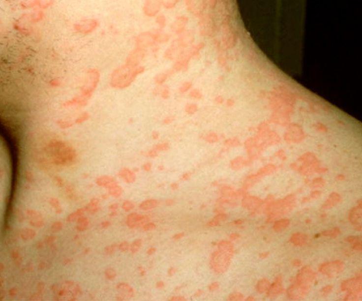 Rash Hives Images Hydrocodone