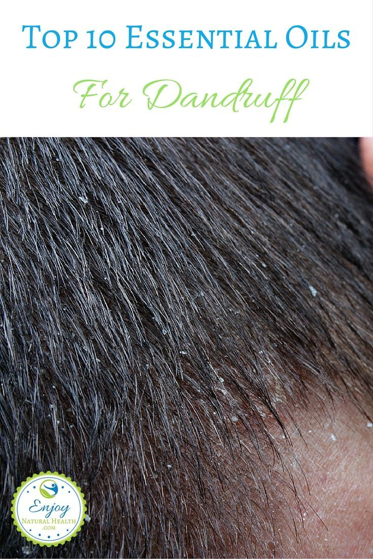 Tired of itchy, dry, scaly scalp? Here are 10 essential oils that will help you get rid of dandruff and bring your hair and scalp back to health!