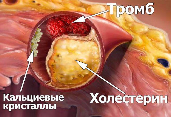 Диета Холестериновые Бляшки. Диета, питание, продукты при холестериновых бляшках