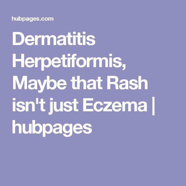Dermatitis Herpetiformis, Maybe that Rash isn't just Eczema | hubpages