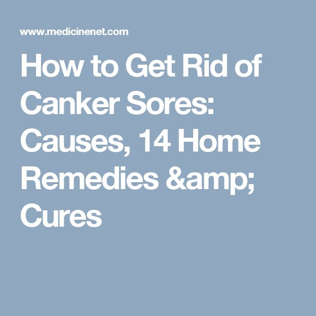 How to Get Rid of Canker Sores: Causes, 14 Home Remedies & Cures