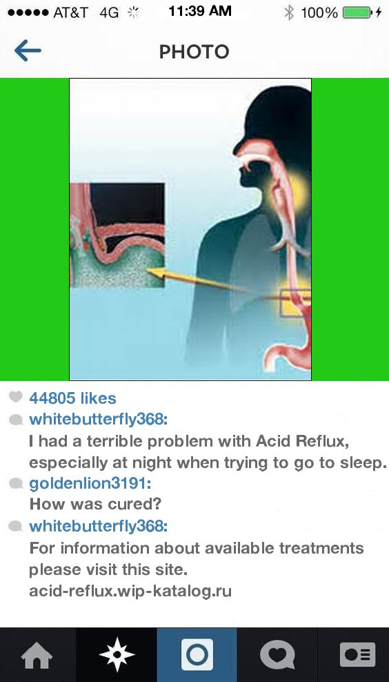 Quick Remedies For Acid Reflux 184432 - Acid Reflux. Acid Reflux Cure!
