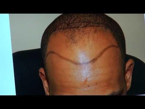 Hair Transplant On Black Males 14