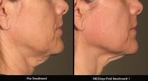 Ultrasonic and RF skin rejuvenation Westbrook CT www.secretbeauty4u.com
