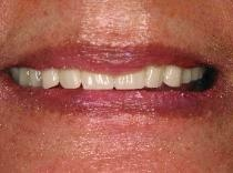 Check out today's dental video on immediate dentures: http://www.youtube.com/watch?v=i37L3bILGlc