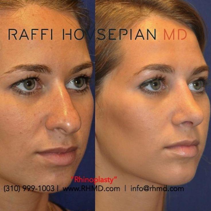 Aesthetic rhinoplasty and subtle botox by plastic surgeons