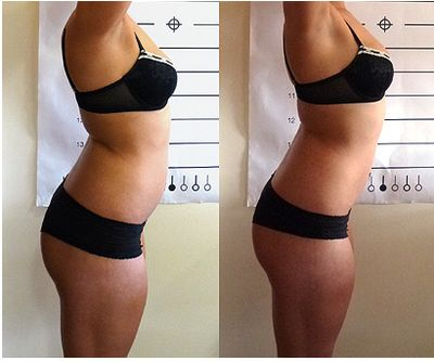 Before and After - Lipo-Light treatment at Central Coast Lipo-Light visit us at centralcoastlipolight.com