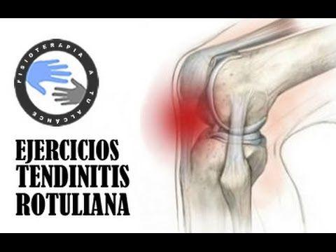 Tendinitis rotuliana, ejercicios, tratamiento y rehabilitacion  /  Fisio...