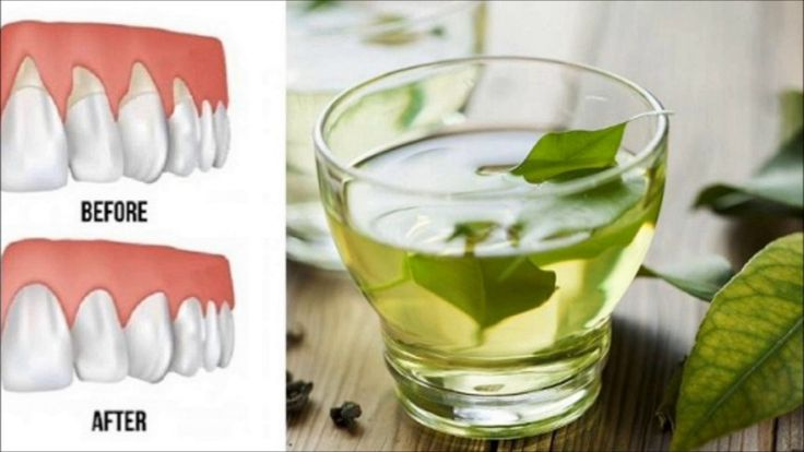 BEST 4 NATURAL CURES TO RECEDING GUMS