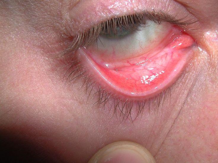 Anemia Symptoms and Natural Remedies