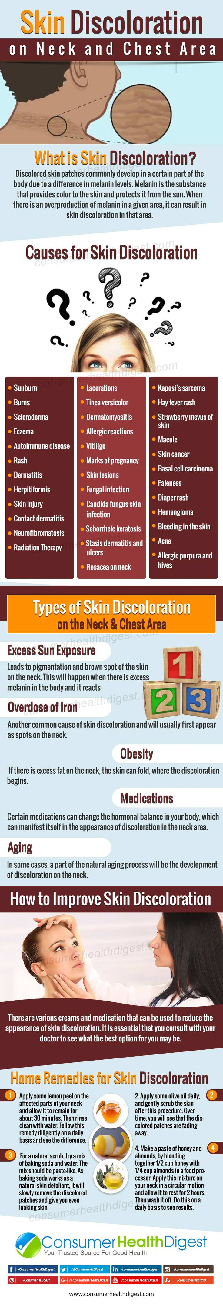 #SkinDiscoloration on Neck and Chest Area – What You Must Know  More info on: https://www.consumerhealthdigest.com/neck-care-center/skin-discoloration-on-neck.html #skincare