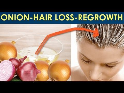 Hair Loss Treatment For Men Onion #hairlosstattoo #HairLossTreatmentDIY