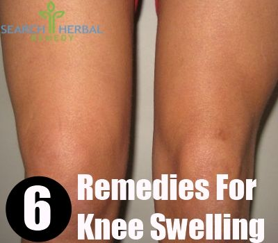When the structures of your knee is badly damaged, it causes inflammation and pain. This swollen knee also appears due to the increase of fluid in or around