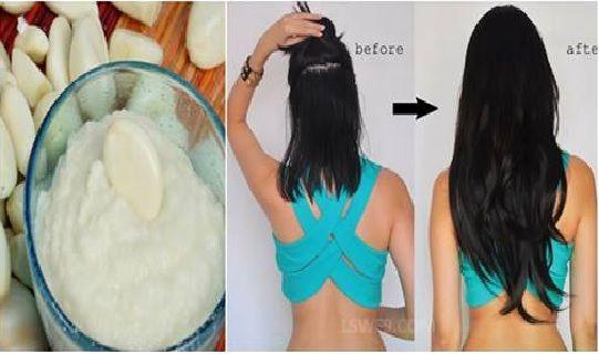 Vous avez déjà essayé plusieurs recettes maisons pour avoir des cheveux plus longs mais les résultats n'étaient pas trop satisfaisantes?! Vous cherchez toujours une solution pour avoir des cheveux plus volumineux plus brillants et pour accélérer la croissance capillaire?! Dans cet article nou…