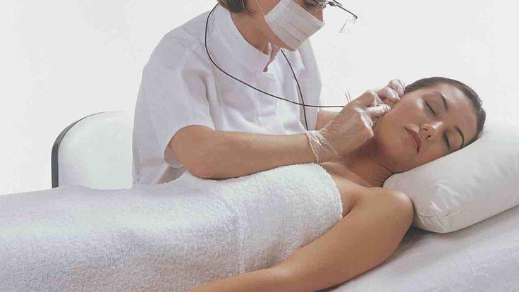 Die Elektroepilation, auch Nadelepilation genannt, gehört zu den besten und effizientesten Methoden für die permanente Haarentfernung überhaupt.